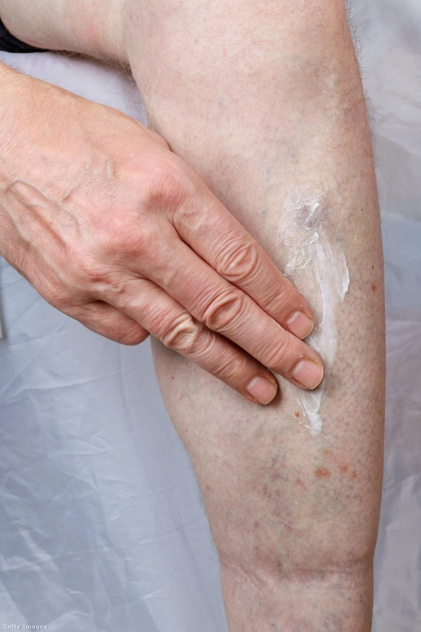 piros foltok a lábakon viszketnek vörös nyak foltok kezelése népi gyógymódokkal