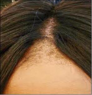 pikkelysömör a fején henna kezelés