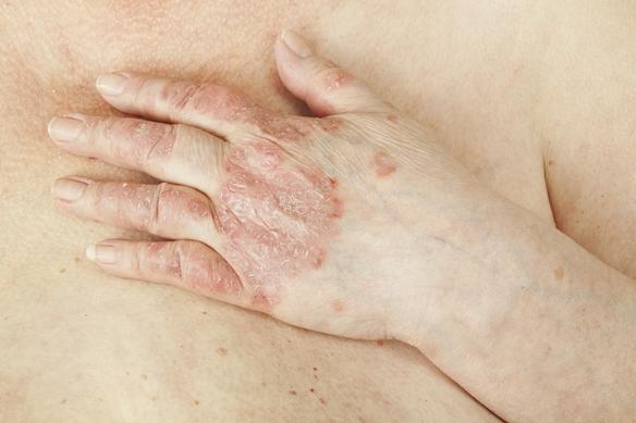 pikkelysömör vastagbél tisztító kezelés szukcesszió a pikkelysömör kezelésére