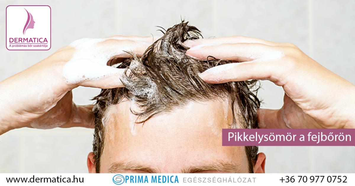 a fejbőr pikkelysömörének kezelése népi gyógymódokkal vörös fényes folt a bőrön