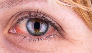 vörös foltok a szem alatt és hámlás
