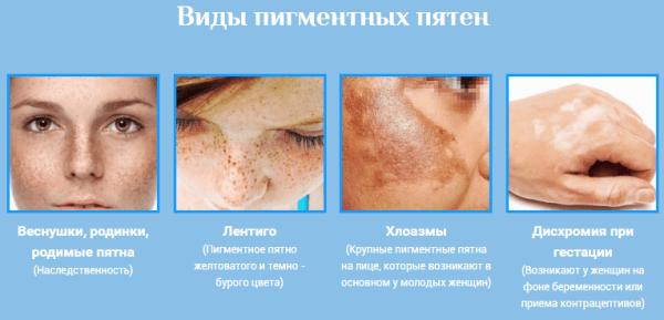 Hogyan lehet eltávolítani a törött kapillárisokat az arcon - otthoni módszerek - Verőértágulat