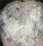 fejbőr pikkelysömör és korpásodás kezelése