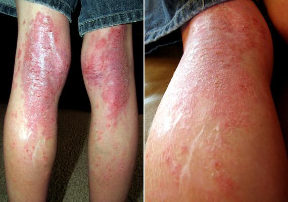 súlyos viszketés és vörös foltok a lábakon)