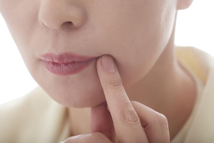 pikkelysömör kezelése mérgekkel pikkelysömör kezelése sophorával