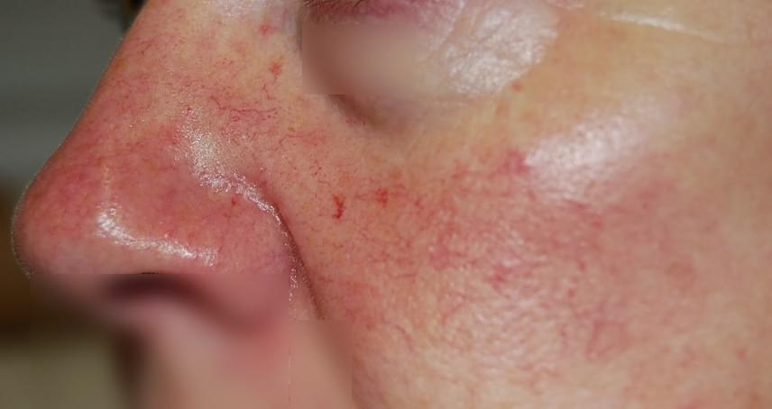 pikkelysömör a fején henna kezelés hogyan kell kezelni s hogyan pikkelysömör