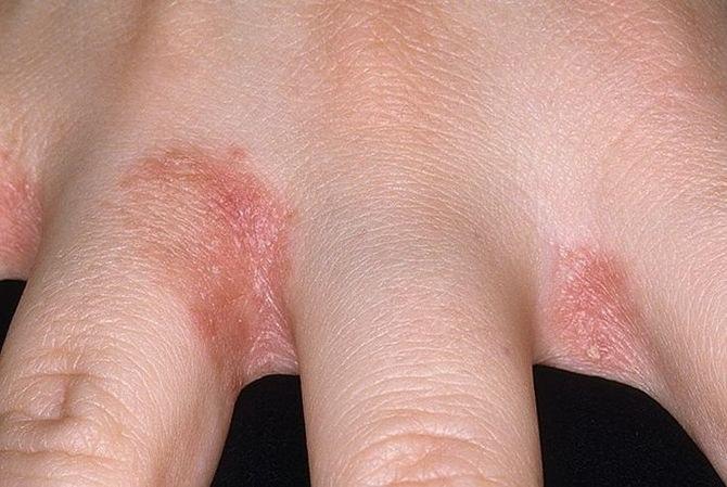 mit tegyünk, ha a kezét vörös foltok borítják hogyan kell kezelni a pikkelysmr foltot