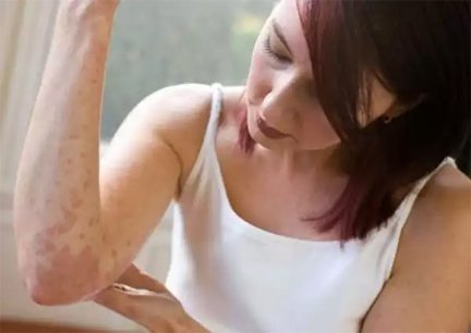 bőrkiütés vörös foltok formájában felnőtteknél a gyógyszeres kezelés miatt