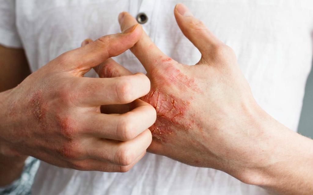 vörös foltok a kezeken viszket, mit kell tenni mit tegyünk, ha a kezét vörös foltok borítják
