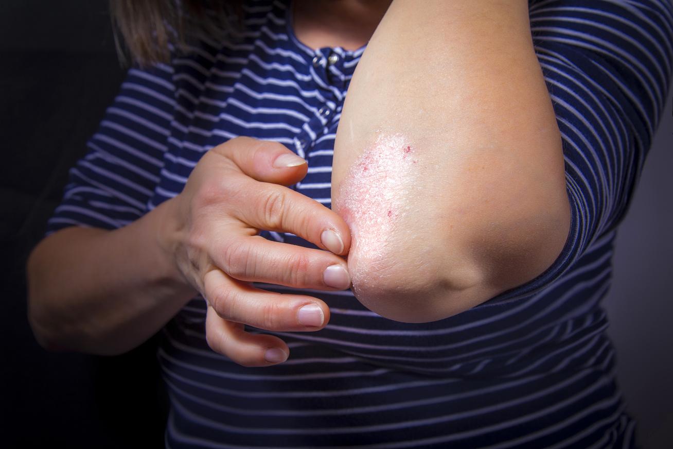 pikkelysömör kezelése ambuláns alapon