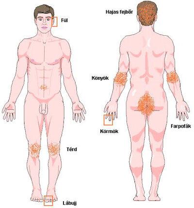 Kvóta psoriasis