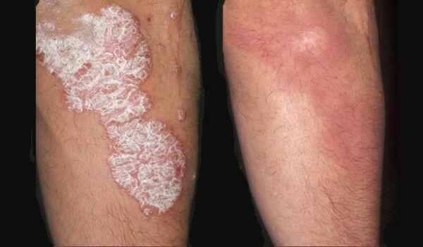 hogyan lehet gyorsan gyógyítani a pikkelysömör könyökét a lábakon és a karokon apró foltok vörösek