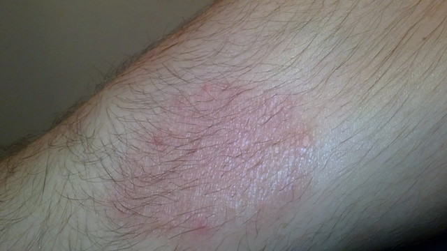mosás után az arc vörös foltokkal borul és lehámlik bőrgyógyász tanácsai a pikkelysömör kezelésében