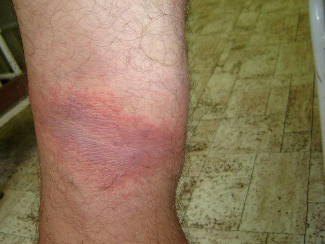 vörös folt a lábán és duzzanat)