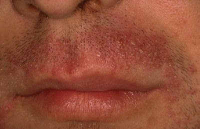 Így előzzük meg a piros pöttyöket: 9 tipp a lábak és az intim területek borotválásához - Blikk