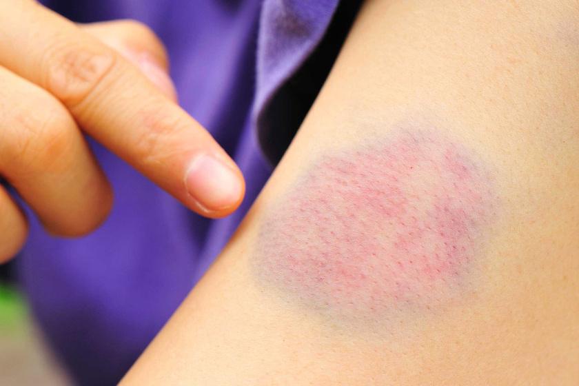 Állandó kék-zöld foltok a testen: súlyos szervi oka is lehet - Egészség | Femina