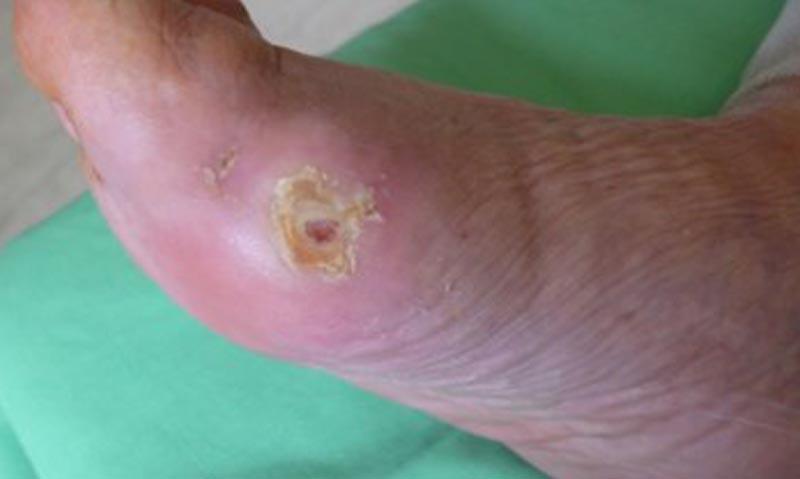 vörös lábfoltok kezelése cukorbetegségben a bőrön egy piros folt nedves lesz