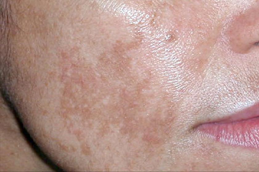 vörös napfoltok a bőrön fotó új hatékony gyógyszerek pikkelysömör kezelésére