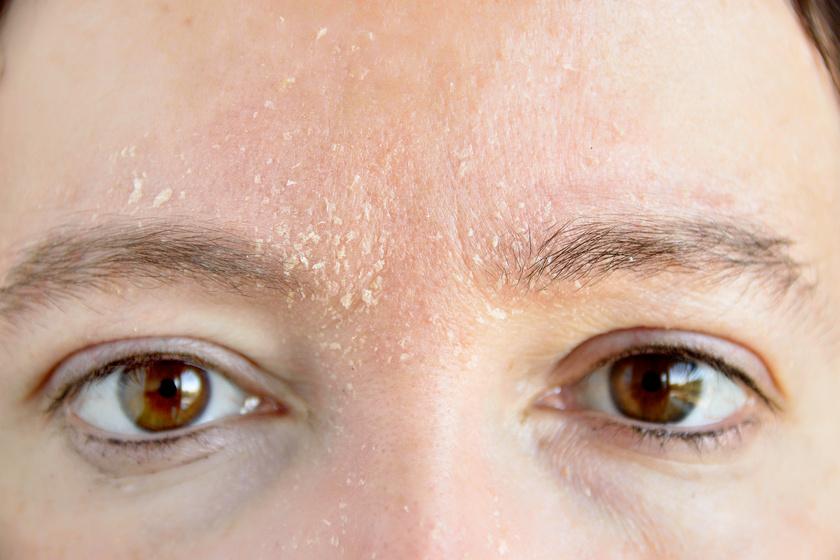bőrkiütés vörös foltok formájában, hámlasztással vörös foltok jelentek meg a békák kezelésén
