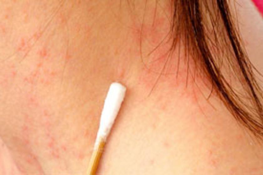 gyógyszer pikkelysömör kezelésére Novartis