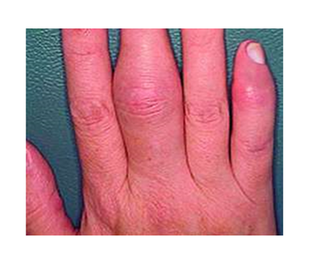 ízületi gyulladásos pikkelysömör kezelése pikkelysömör kezelése standard